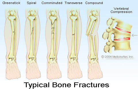 Can You Treat Fracture In Dog S